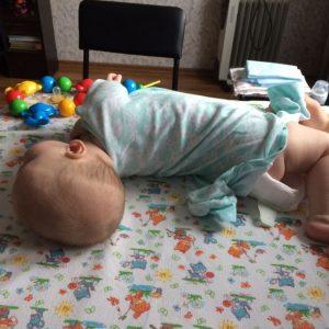 Гипертонус у ребенка – первые симптомы, основные причины появления и правила лечения