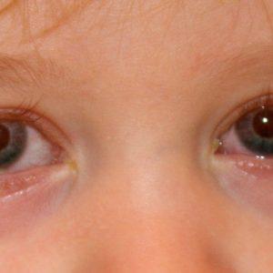 Конъюнктивит у детей – причины, диагностика, советы чем лечить и подбор эффективных препаратов