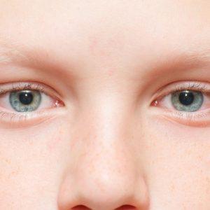 Красные глаза у ребенка: возможные причины, варианты и способы лечения