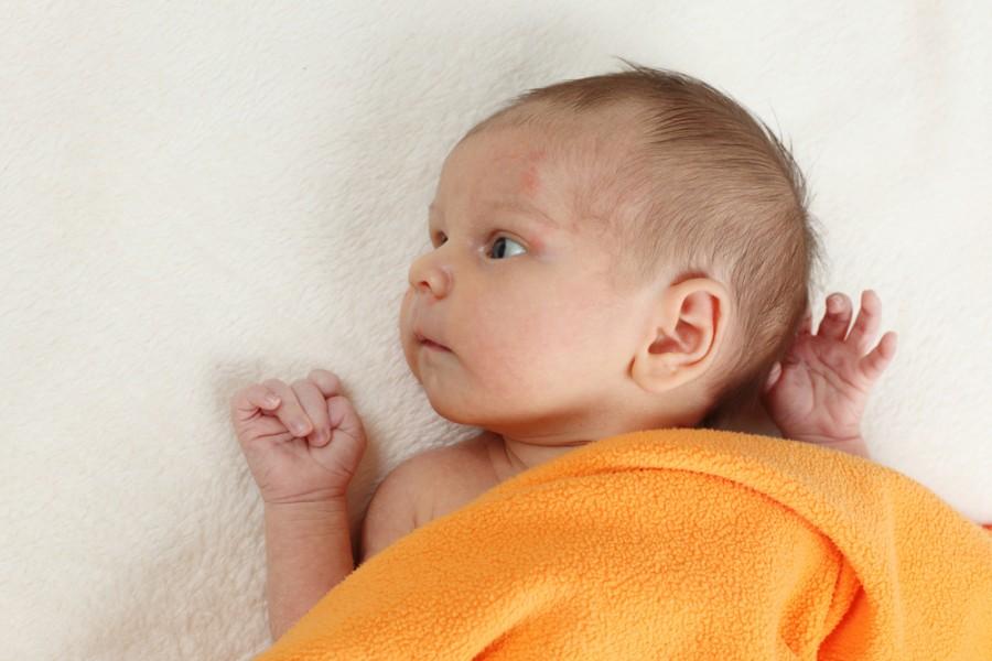 Потница у детей: как выглядит и чем лечить у ребенка до года