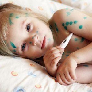 Ветрянка у детей – симптомы, методы быстрого лечения и профилактика заболевания
