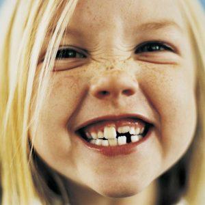 Ребенок скрипит зубами: варианты проявления, лучшие методы устранения и советы по лечению причин
